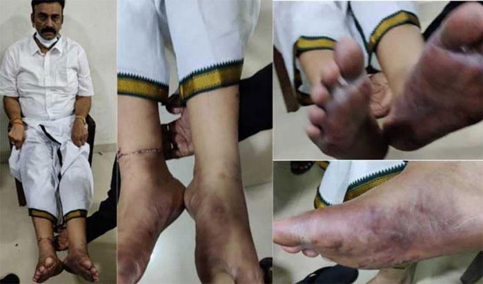 army hospital reports revealed of ysrcp mp raghurama krishnam raju