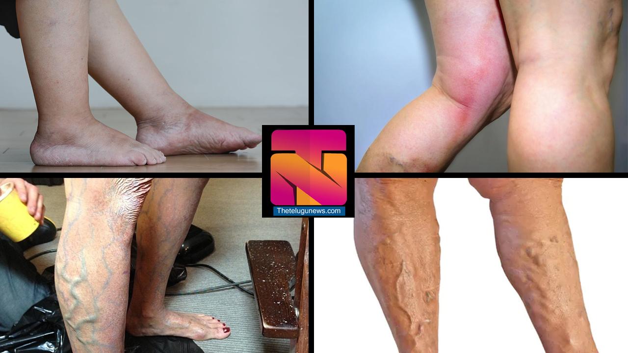 LEG PROBLEMS