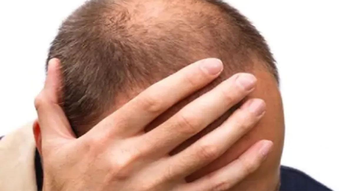 bald head home remedies with mango seed