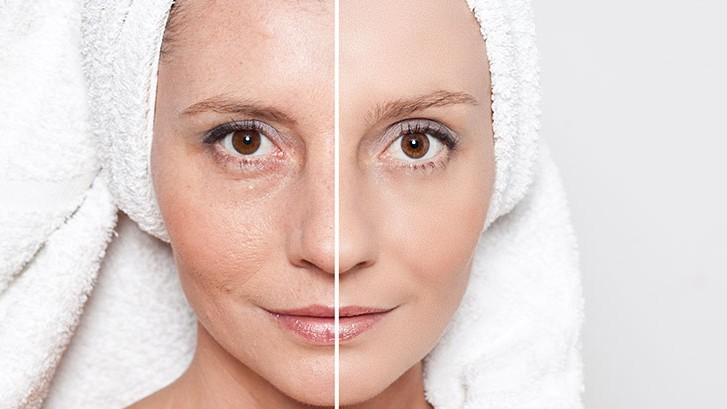 health benefits of skin wrinkies tips